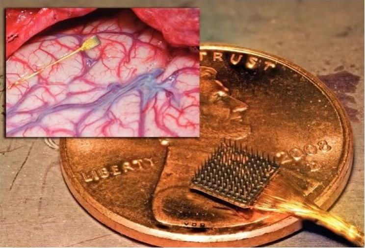 как убрать имплантированный чип